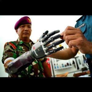 serka siswadi bionic
